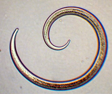A Free-Living Nematode, the simplicity of a hydrostatic skeleton is evident (22RM)